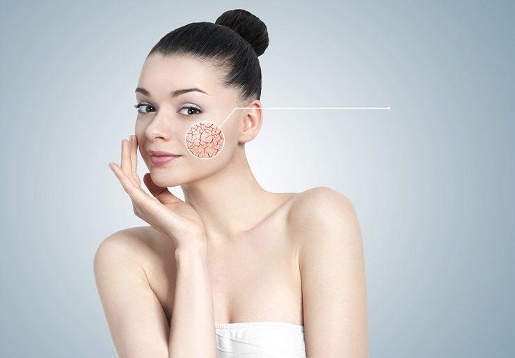 Как вылечить купероз на лице - профилактика и методы лечения