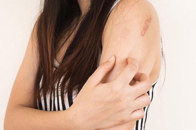 Псориаз может возникнуть на любой части тела