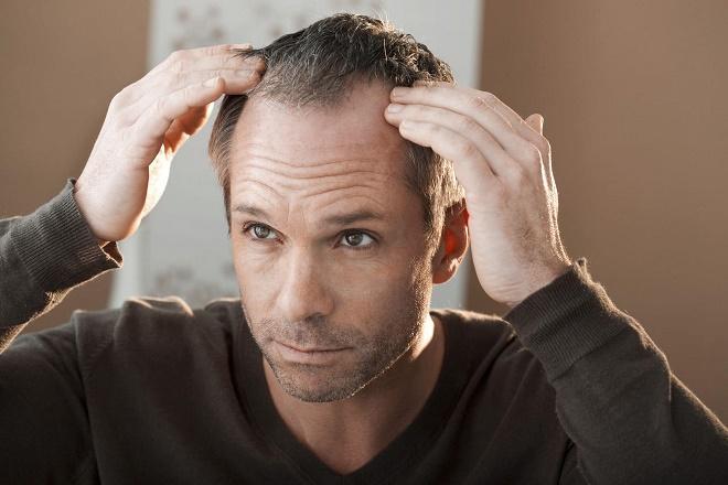 От потери волос из-за недостатка витаминов страдают и мужчины