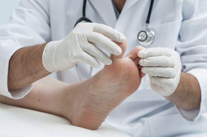 При сильном и постоянном гипергидрозе, лучше обратиться к врачу