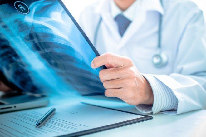 Рентген и флюорография - необходимая диагностика