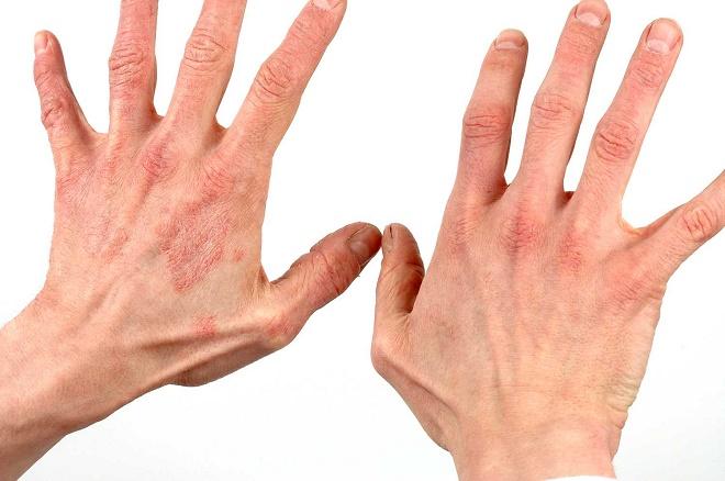 Существует множество причин появления красных точек на руках