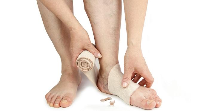 Вальгусная деформация стопы у ребенка или взрослого