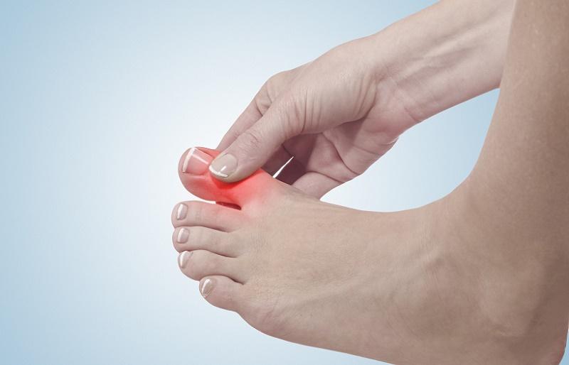 Лечение вальгусной деформации стопы у взрослых