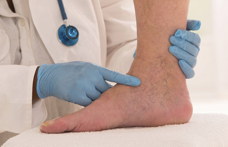 Варикоз вен нижних конечностей - лечение