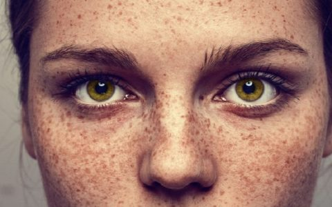 Почему на лице появляются пигментные пятна?