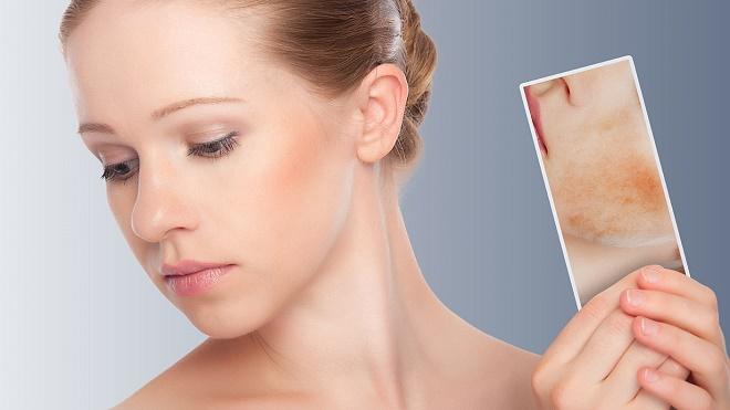 Красные пятна могут быть вызваны аллергией