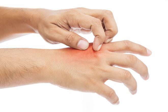 Зуд - один из поводов обратиться к дерматологу