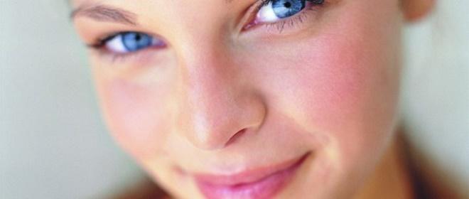 Розацеа - дерматологическая патология, требующая терапии