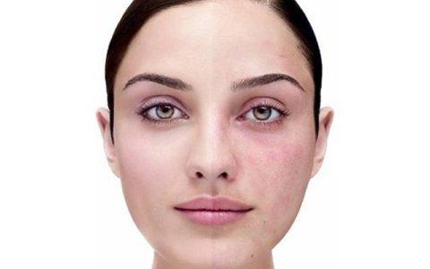 Троксевазин от купероза на лице