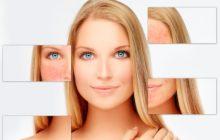 Как выбрать крем от звездочек на лице - устранение купероза