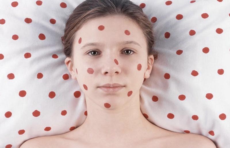 Болезни похожие на краснуху - симптомы краснухи