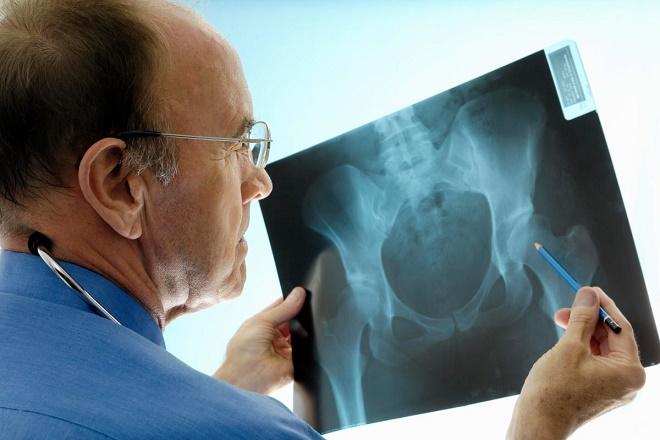 Для постановки диагноза необходимо пройти обследование с рентгеном