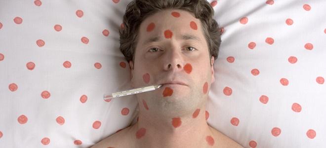 Скарлатина может вызвать повышение температуры тела