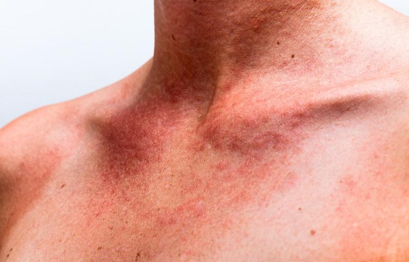 Скарлатина у взрослых - симптомы и лечение