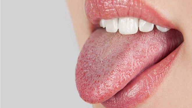 Если наряду с першением появляется белый налет на языке, нужно обратиться к врачу
