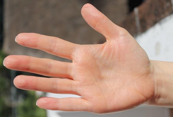 Облазить кожа на руках может по причине внутренних патологических состояний