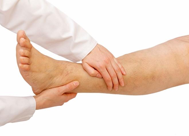 Эндартериит нижних конечностей лечение