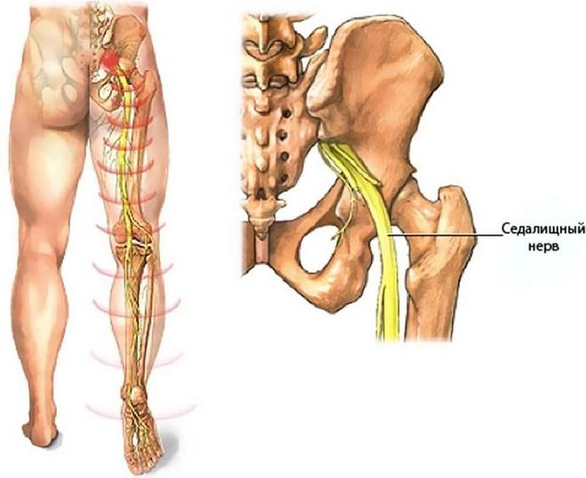 Седалищный нерв является самым большим в организме человека и проходит через все тело