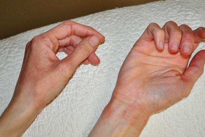 Возможно вы являетесь просто обладателем слишком тонкой кожи рук