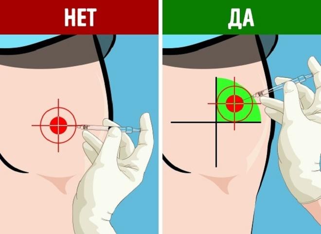 Схема, как правильно колоть внутримышечные уколы